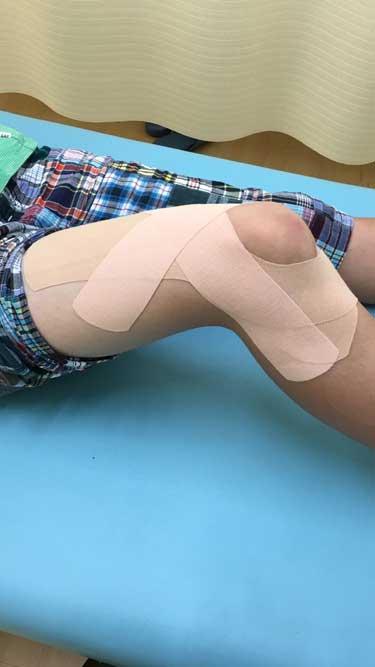 膝のテーピング実施例3