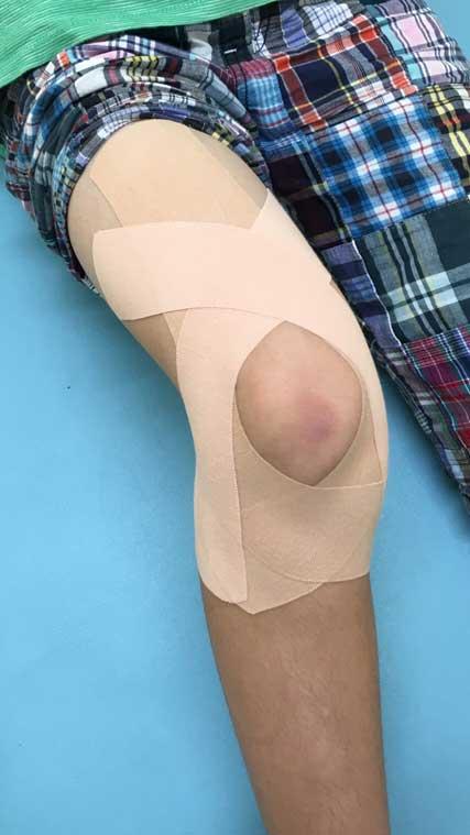 膝のテーピング実施例4