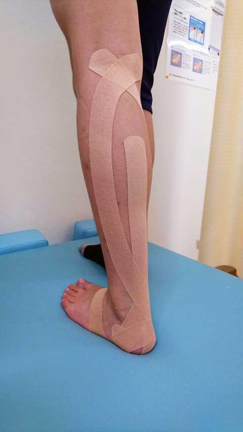 膝のテーピング実施例1