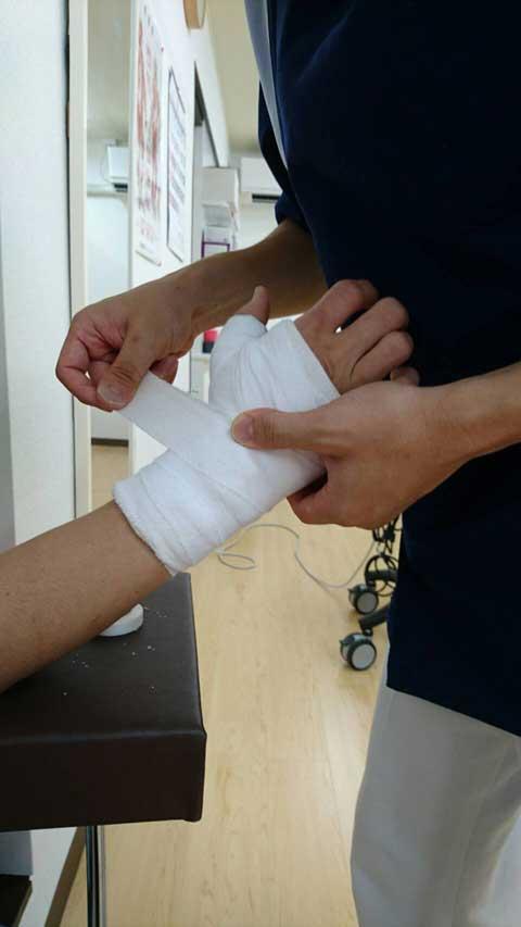 手首骨折固定例