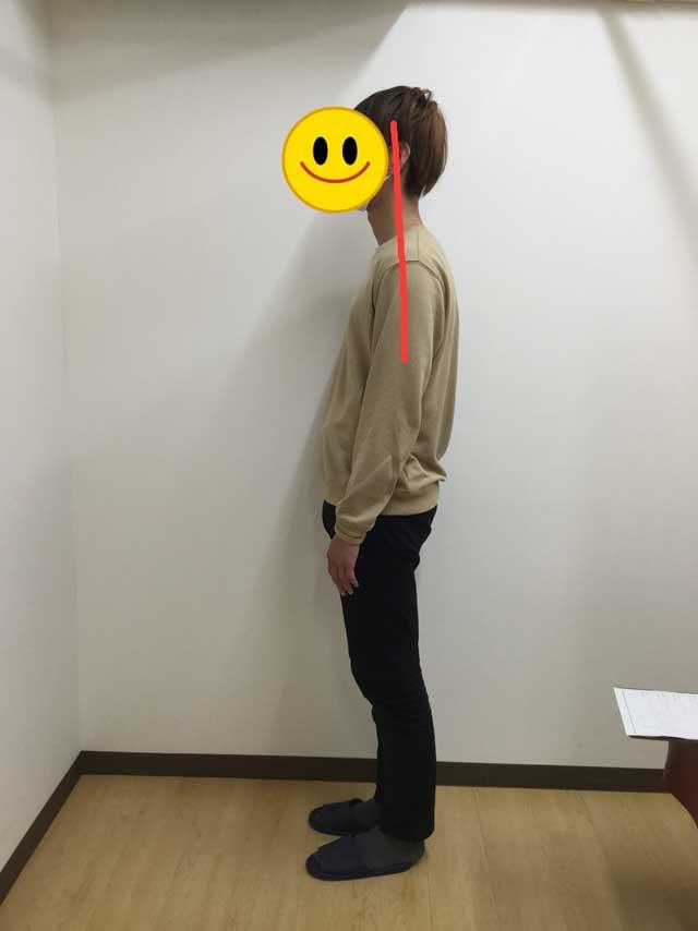 姿勢矯正2
